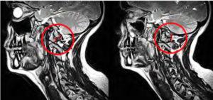 Figure 10. Sagittal Atlas Misalignment (A – left), Normal Alignment B – right)