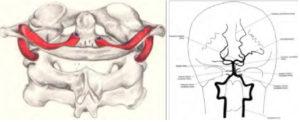 Figure 9. Vertebral Artery Pathways